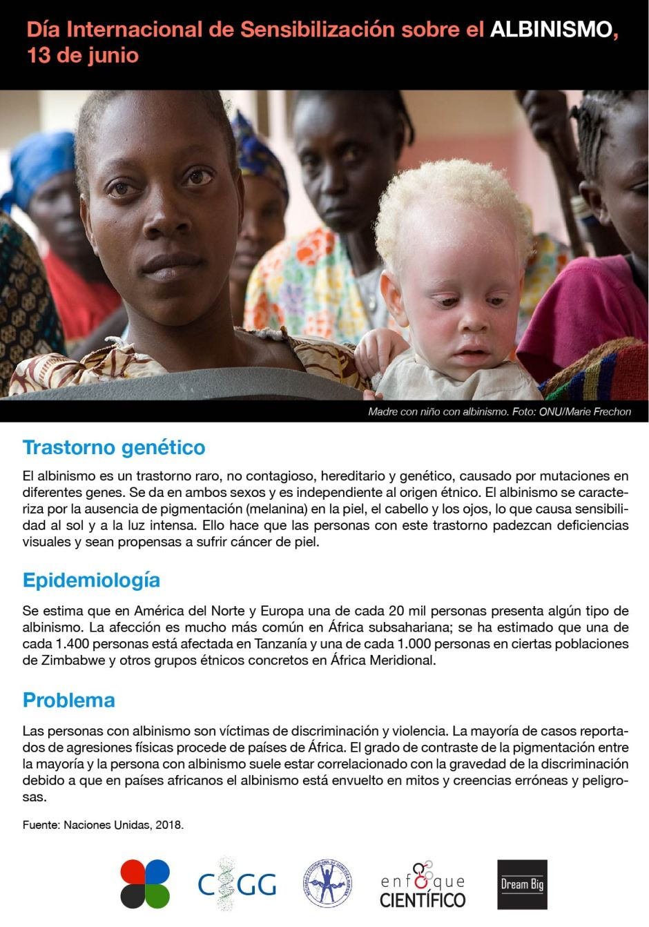 Albinismo.jpg